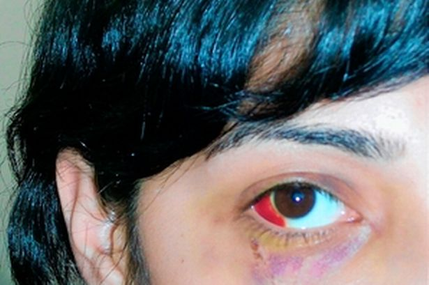 Muslim student's injuries